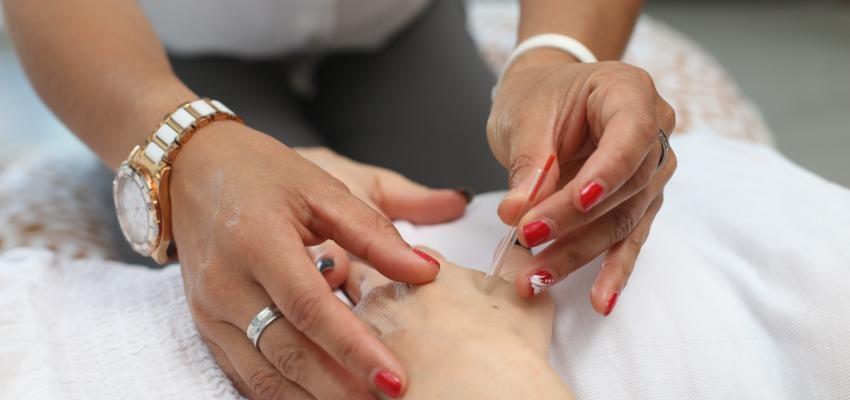 Comment faire de l'acupuncture sur la main ?