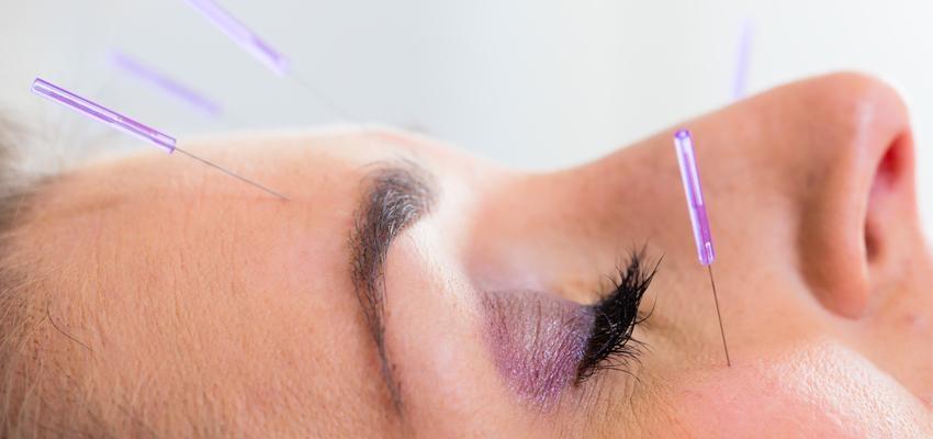 Comment soigner une sinusite avec l'acupuncture ?