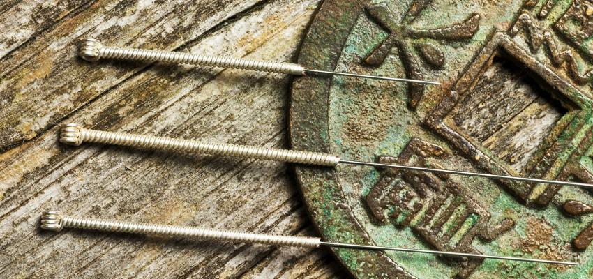 L'acupuncture pour en finir avec la dépression