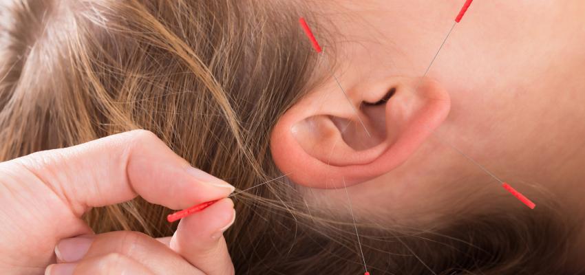 Auriculothérapie, l'acupuncture sur l'oreille