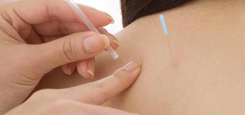 L'acupuncture contre le stress