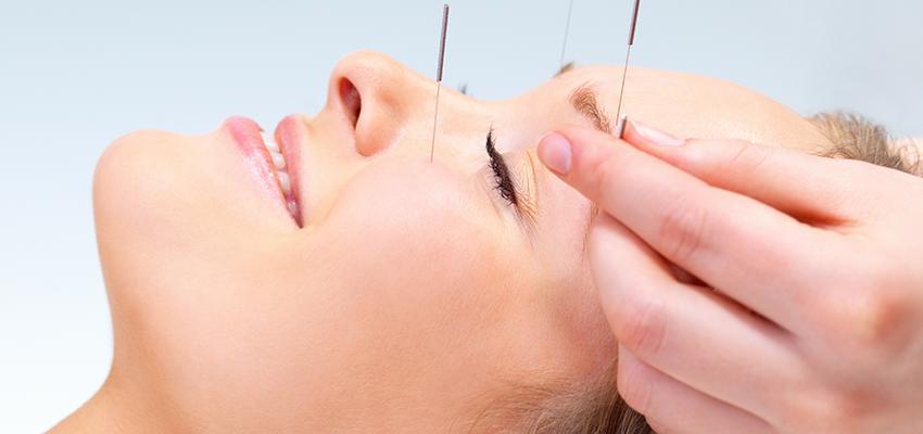 Qu'est-ce que l'acupuncture chinoise ?