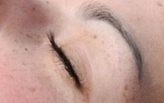 marques et taches de naissance yeux